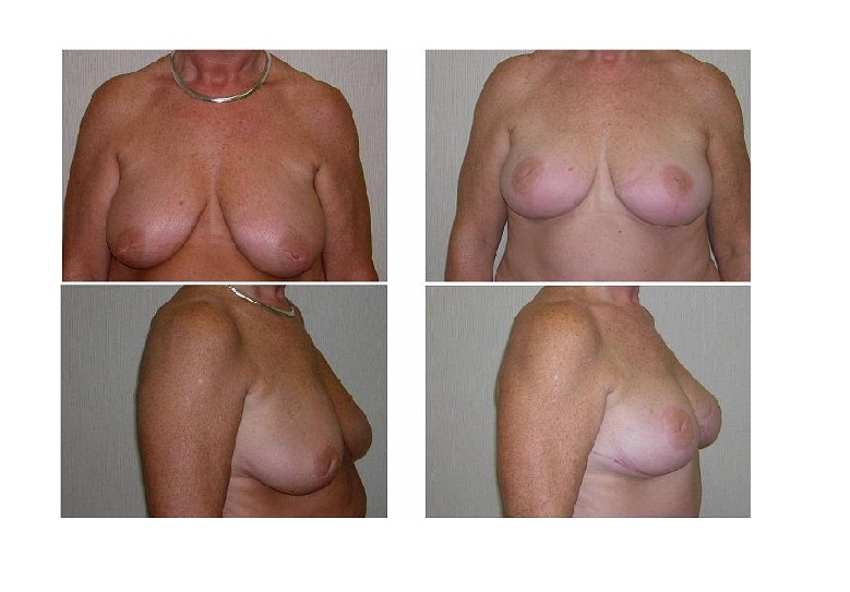 Georgia Breast Lift Doctor 8