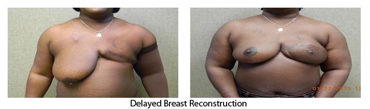 breast-rec05