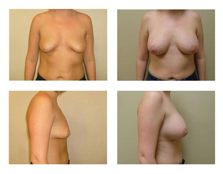 breast-aug04