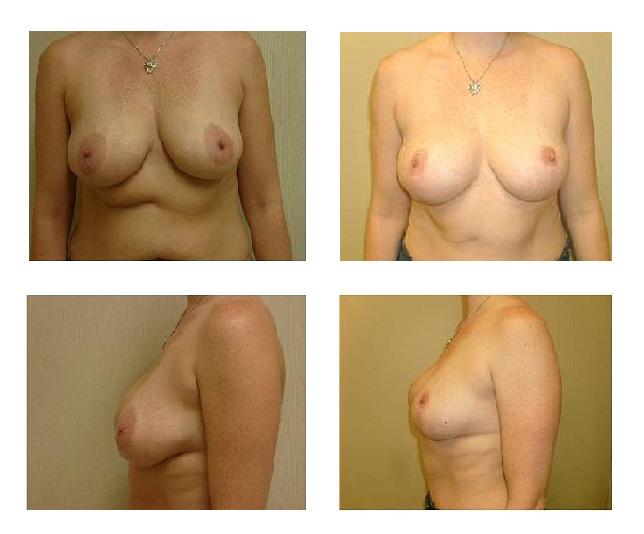 breast-lift01