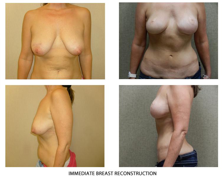 breast-rec01