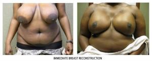 breast-rec03