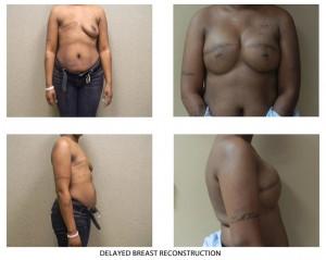 breast-rec04